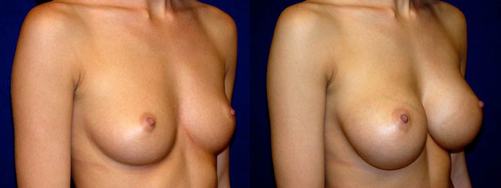 Right 3/4 View - Breast Augmentation - Saline Implants