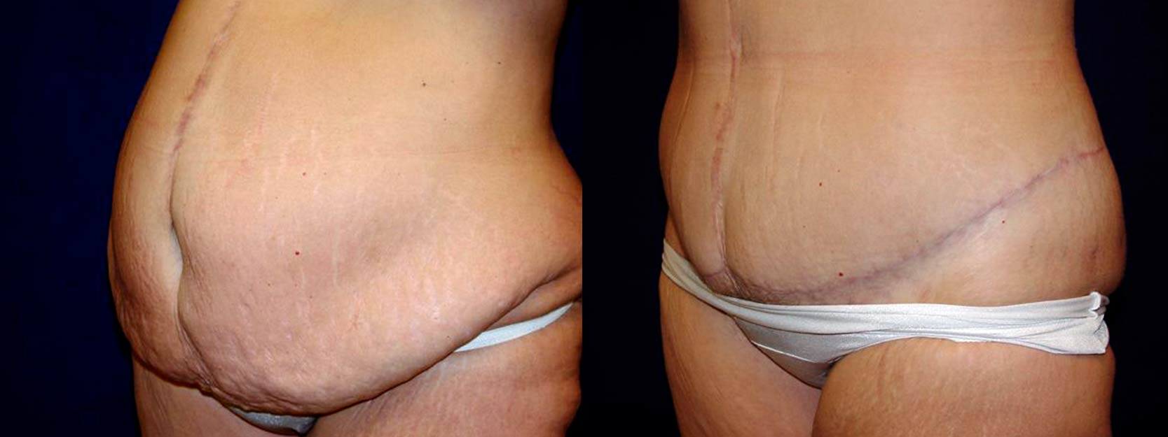 Frontal View - Circumferential Tummy Tuck After Massive Weight Loss