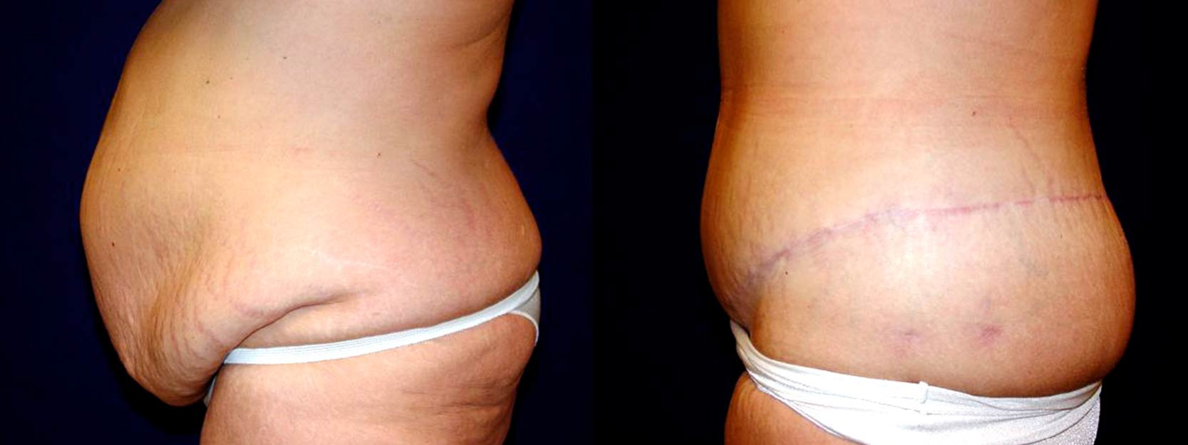 Left Profile View - Circumferential Tummy Tuck After Massive Weight Loss