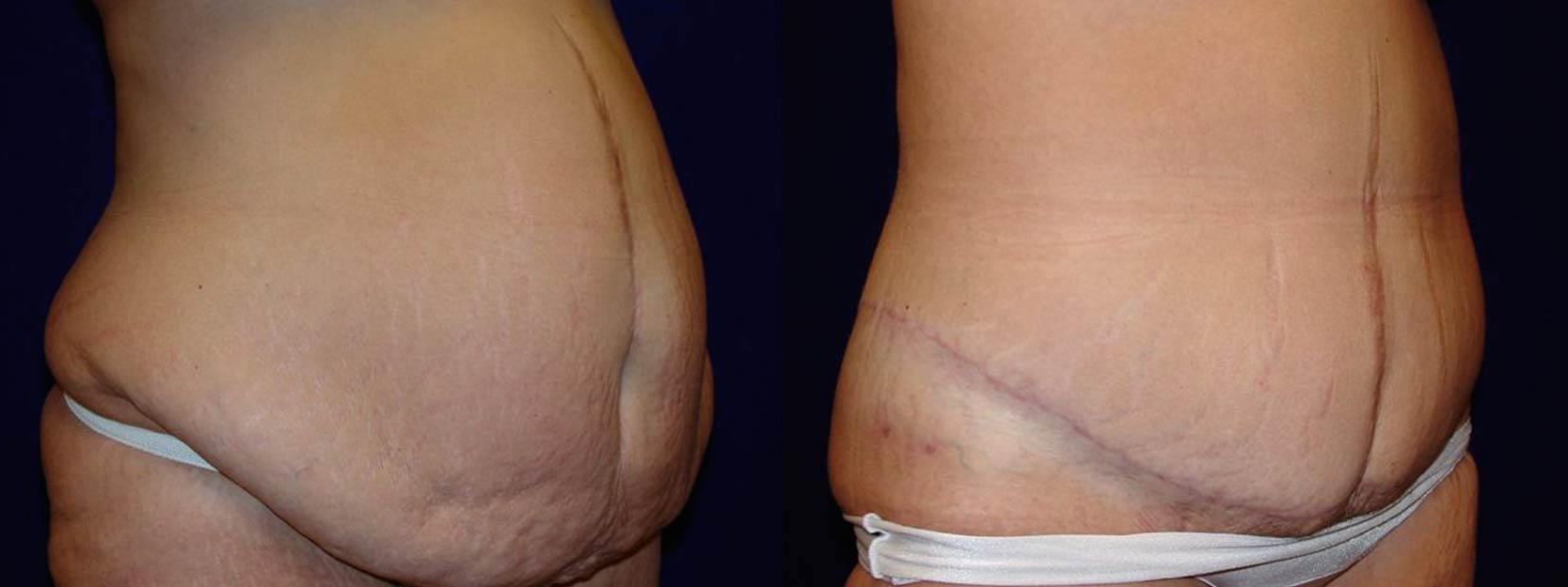 Right 3/4 View - Circumferential Tummy Tuck After Massive Weight Loss