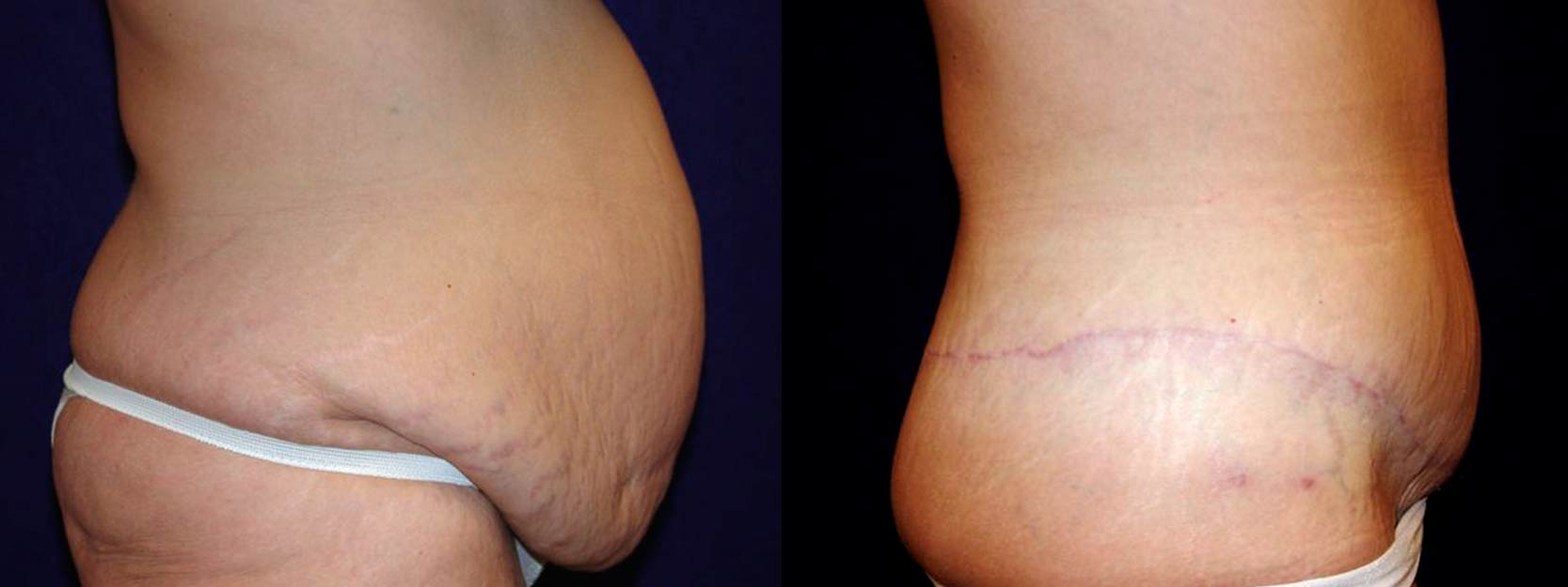 Right Profile View - Circumferential Tummy Tuck After Massive Weight Loss