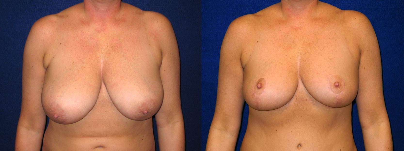 Frontal View - Breast Reduction