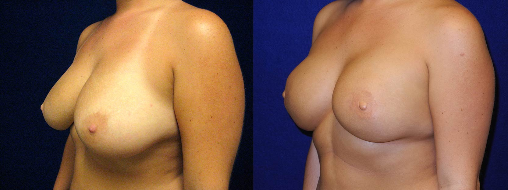 Left 3/4 View - Breast Reconstruction