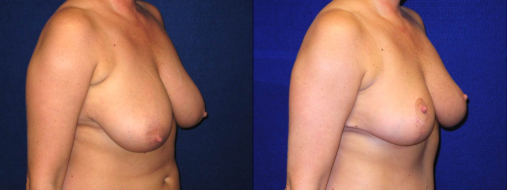 Right 3/4 View - Breast Reduction