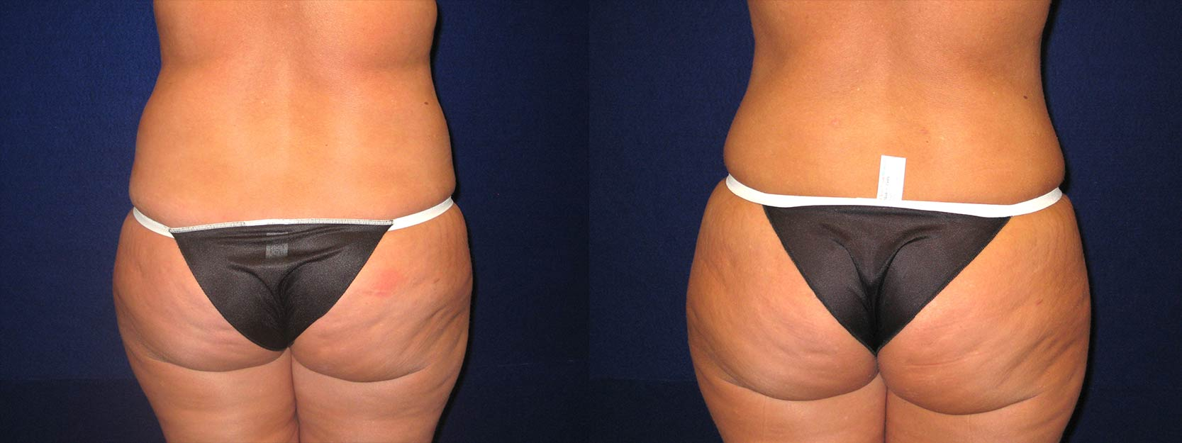 Back View - Tummy Tuck After Pregnancy