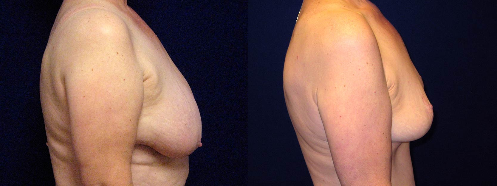 Right Profile View - Breast Lift Reduction