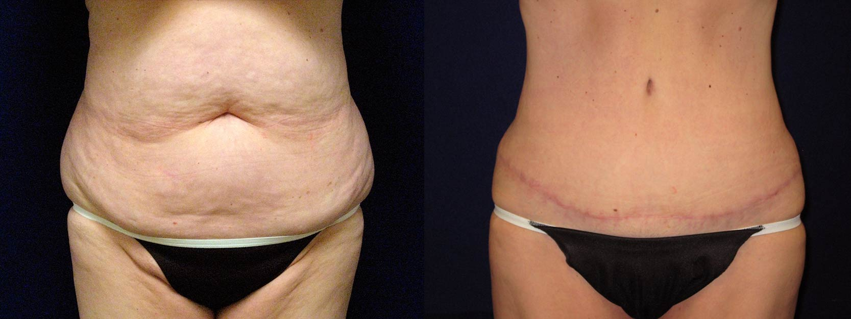 Frontal View - Abdominoplasty