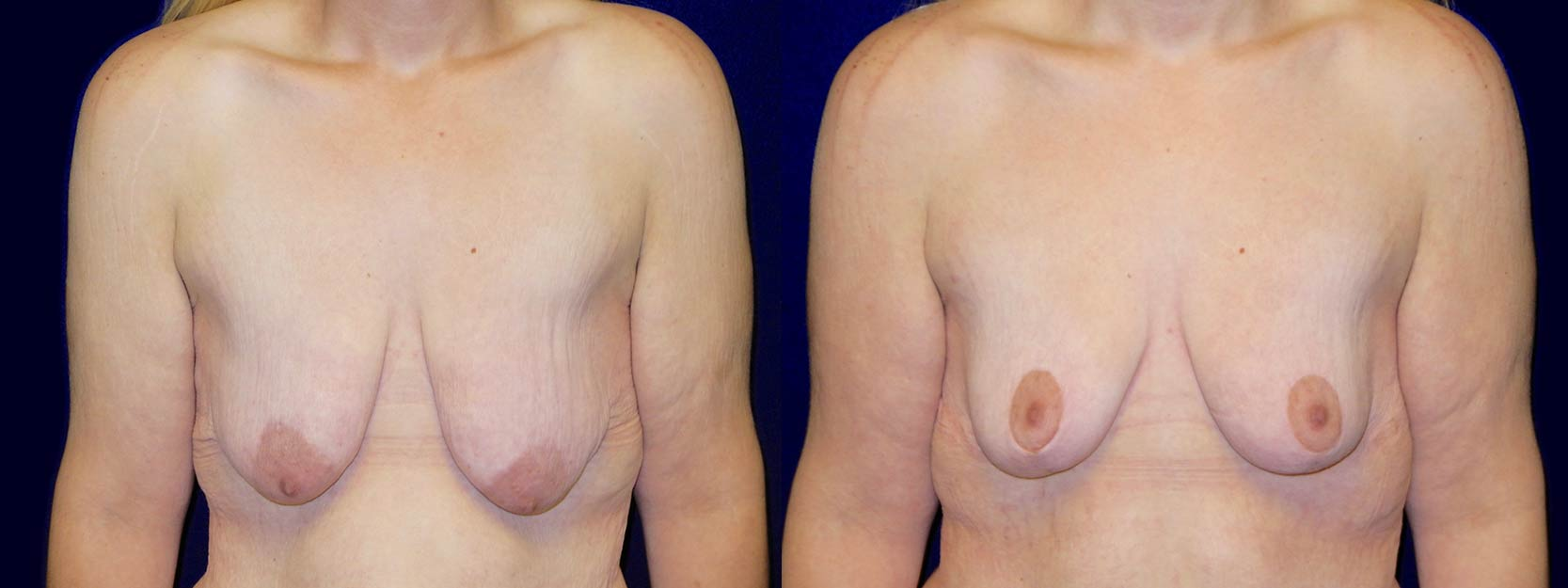 Frontal View - Breast Lift After Weight Loss