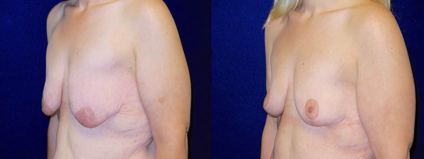 Left 3/4 View - Breast Lift After Weight Loss
