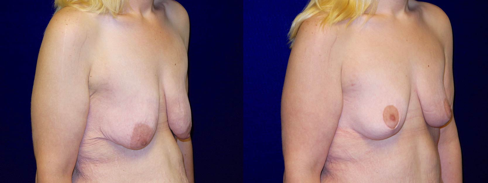 Right 3/4 View - Breast Lift After Weight Loss