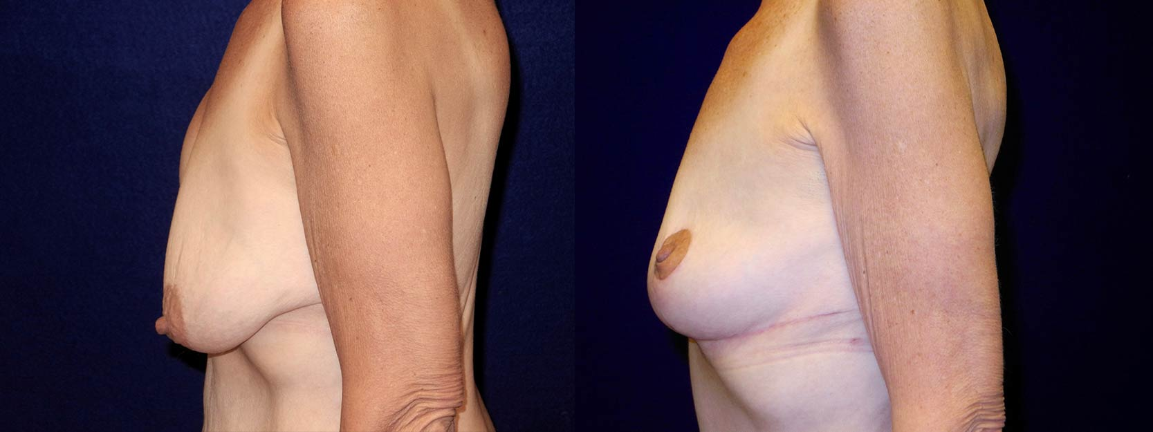 Left Profile View - Breast Lift After Weight Loss