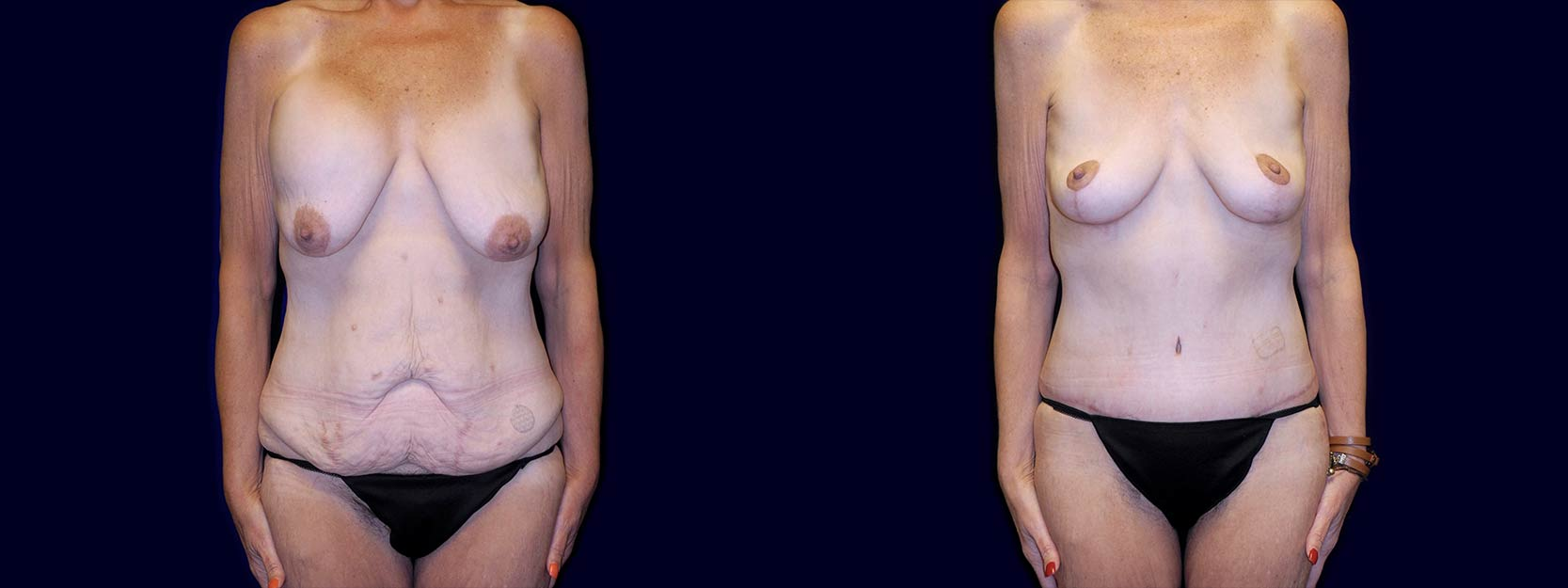 Frontal View - Surgery After Weight Loss - Breast Lift & Tummy Tuck