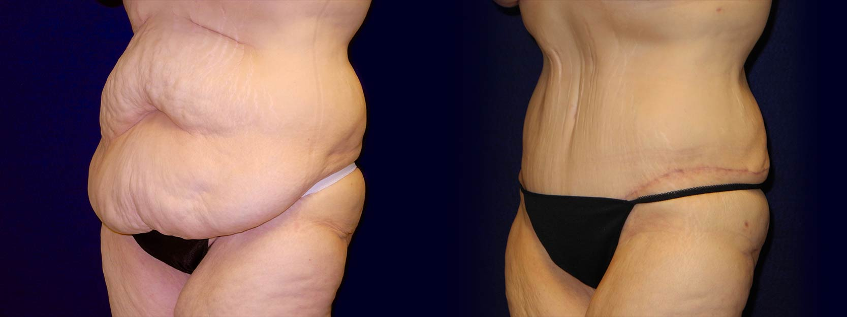 Left 3/4 View - Tummy Tuck After Weight Loss