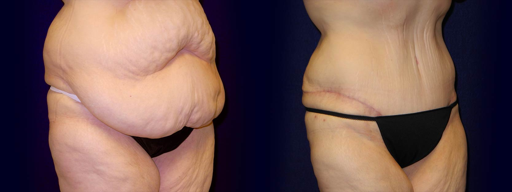 Right 3/4 View - Tummy Tuck After Weight Loss