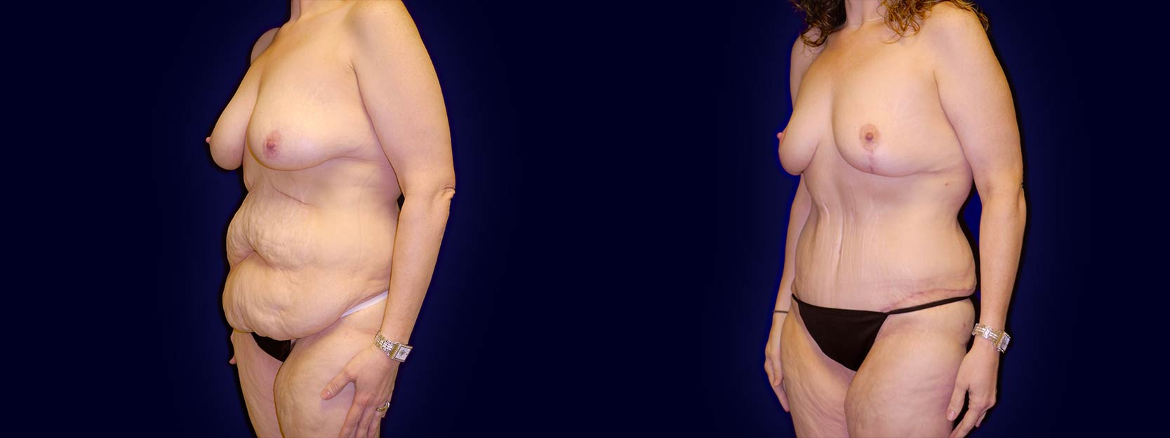 Left 3/4 View - Surgery After Weight Loss - Breast Lift & Tummy Tuck