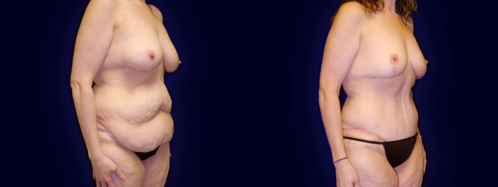 Right 3/4 View - Surgery After Weight Loss - Breast Lift & Tummy Tuck