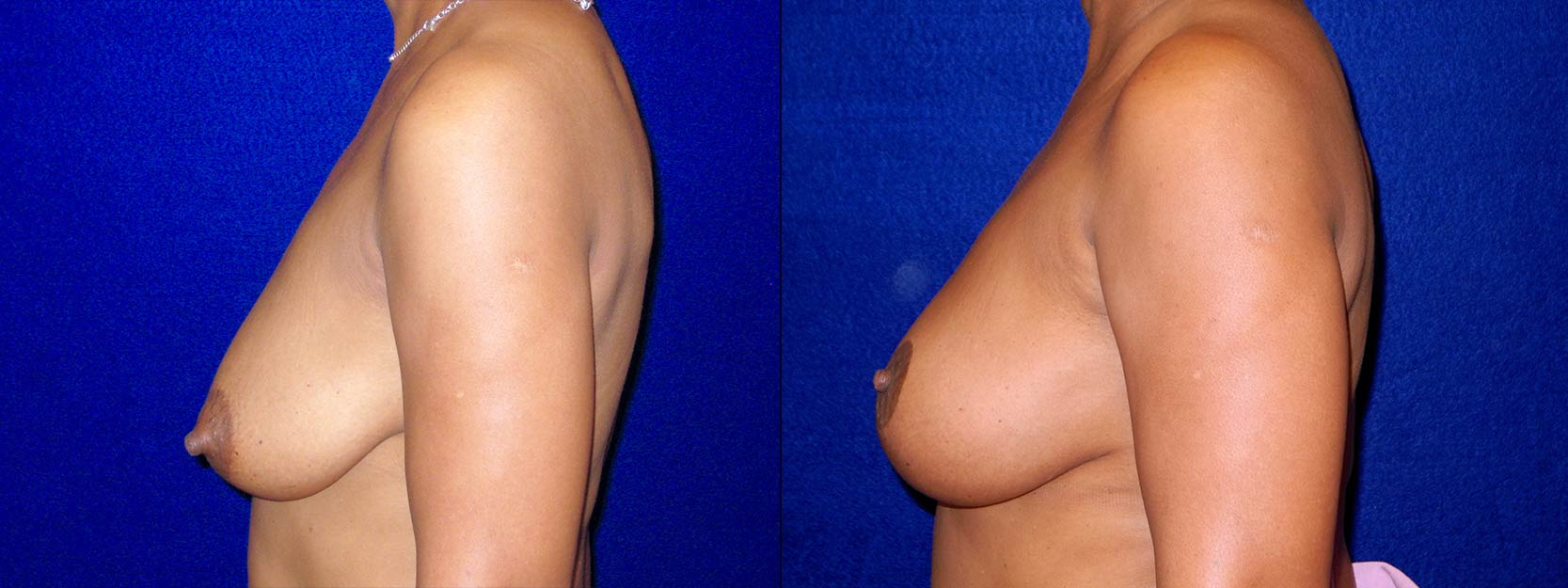 Left Profile View - Breast Reconstruction