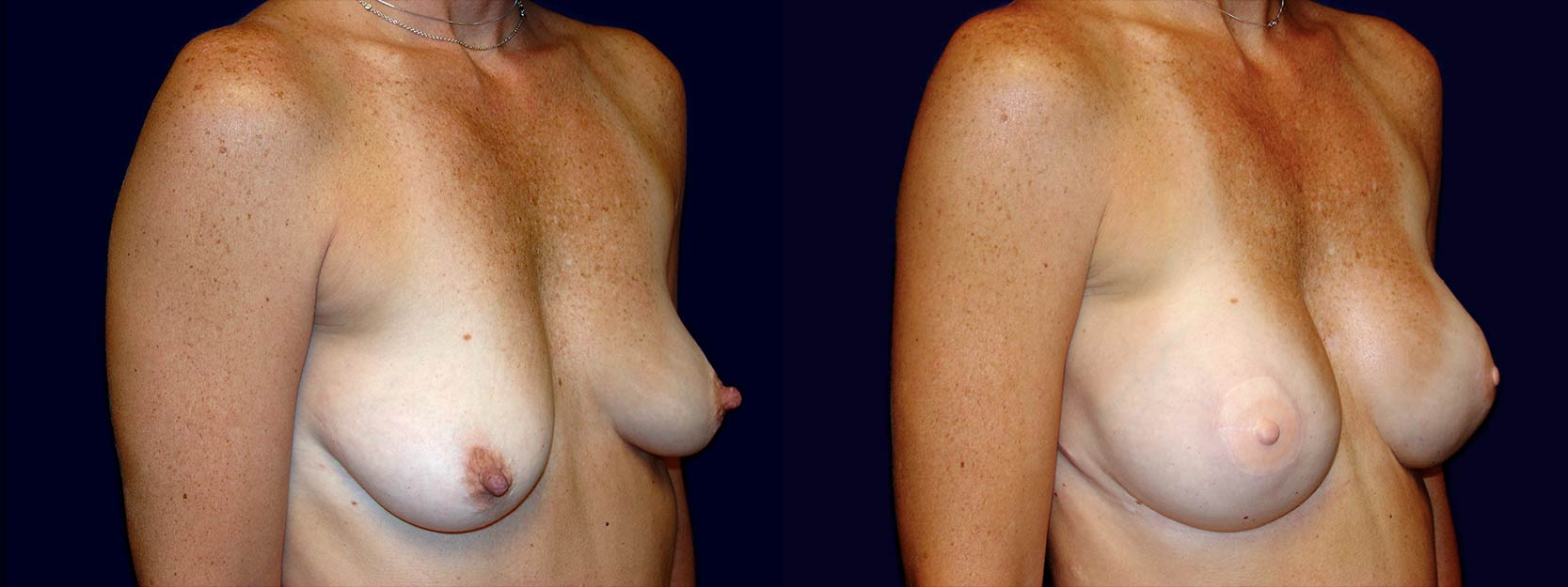 Right 3/4 View - Breast Reconstruction