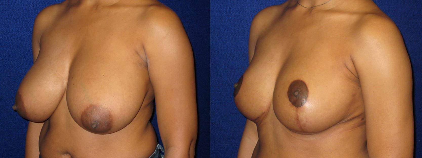 Left 3/4 View - Breast Reduction