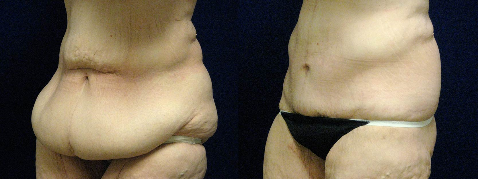 Left 3/4 View - Circumferential Tummy Tuck After Massive Weight Loss