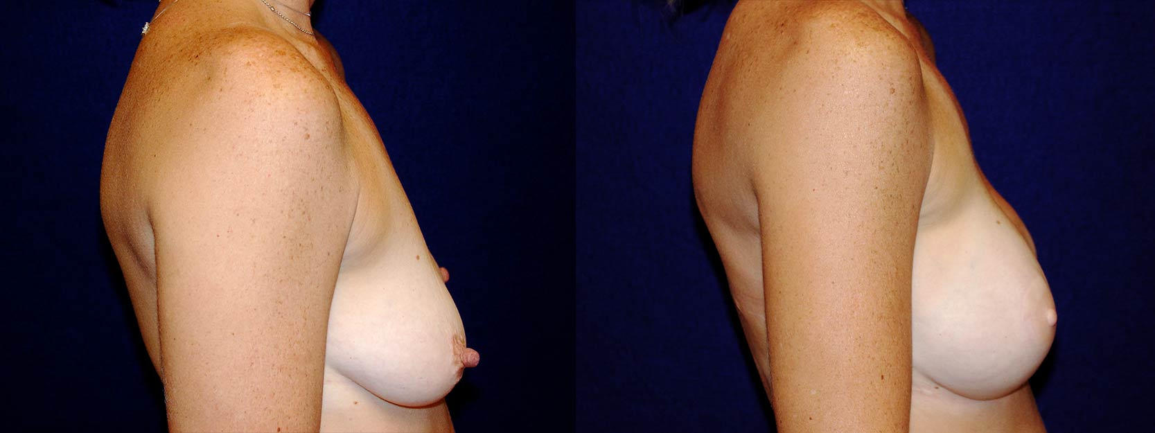 Right Profile View - Breast Reconstruction