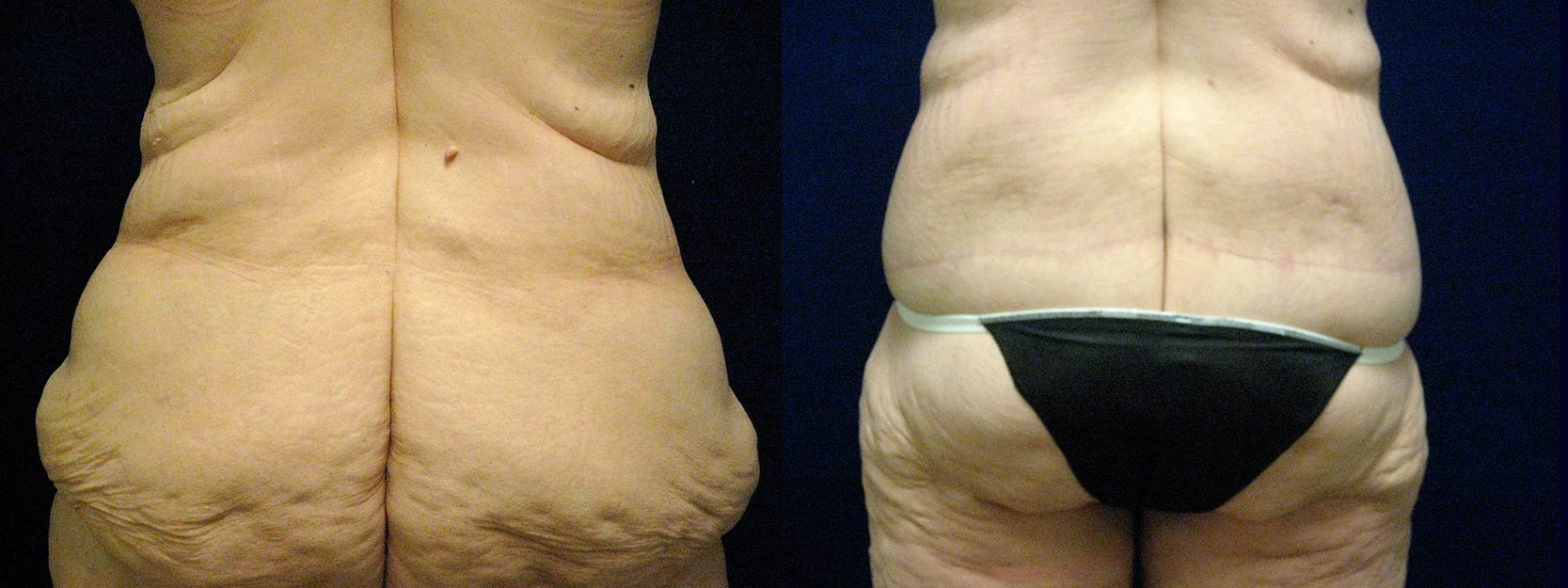 Posterior View - Circumferential Tummy Tuck After Massive Weight Loss