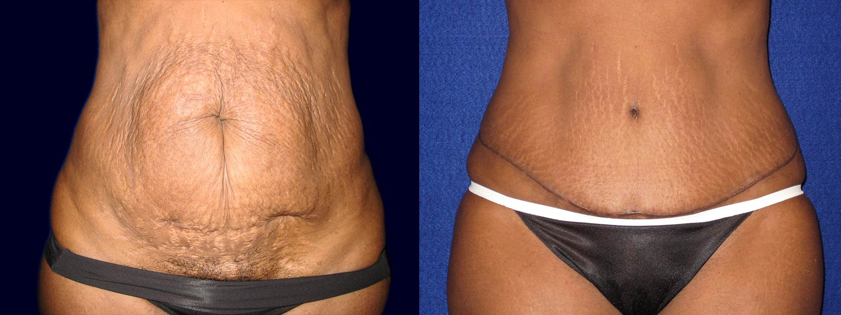 Frontal View - Tummy Tuck After Pregnancy