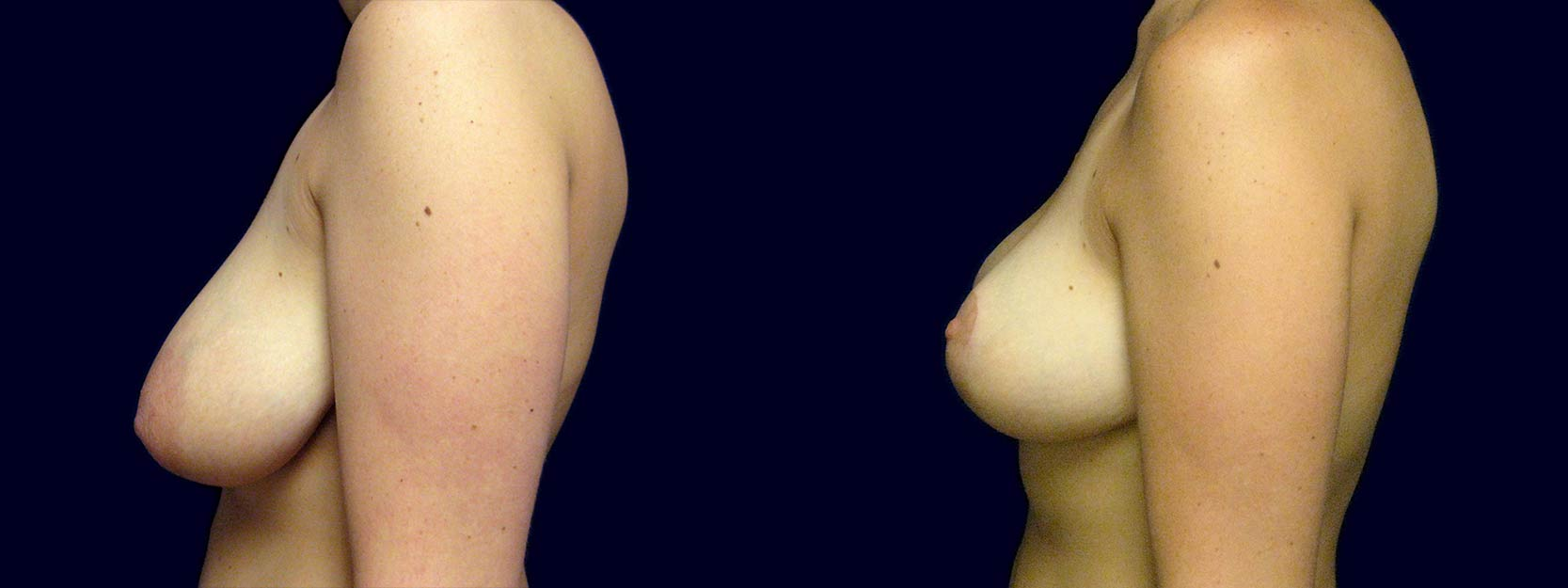 Left Profile View - Breast Lift