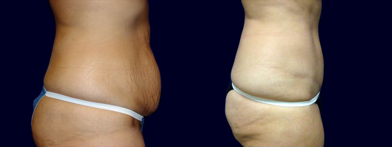 Right Profile View - Tummy Tuck After Pregnancy