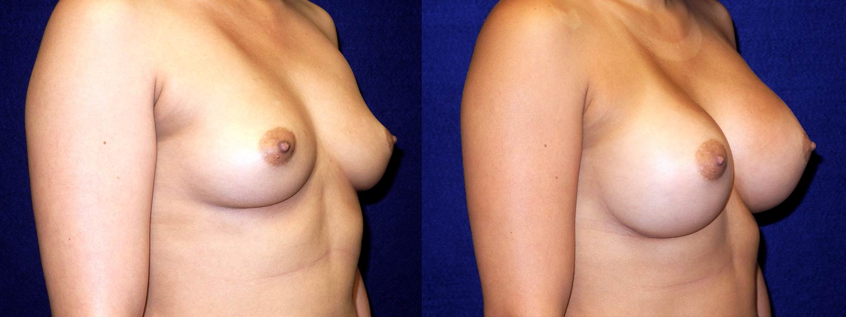 Right 3/4 View - Breast Augmentation - Silicone Implants