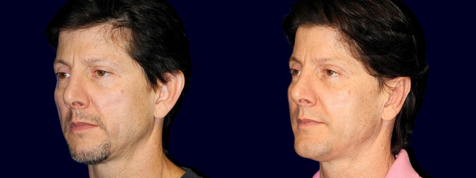 Left 3/4 View - Otoplasty with Chin Augmentation