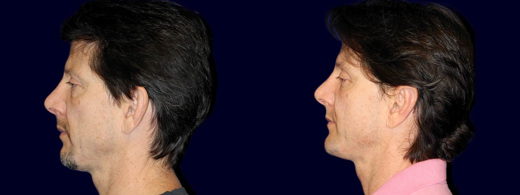 Left Profile View - Otoplasty with Chin Augmentation
