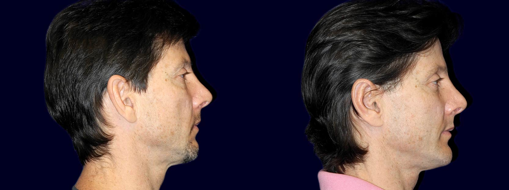 Right Profile View - Otoplasty with Chin Augmentation