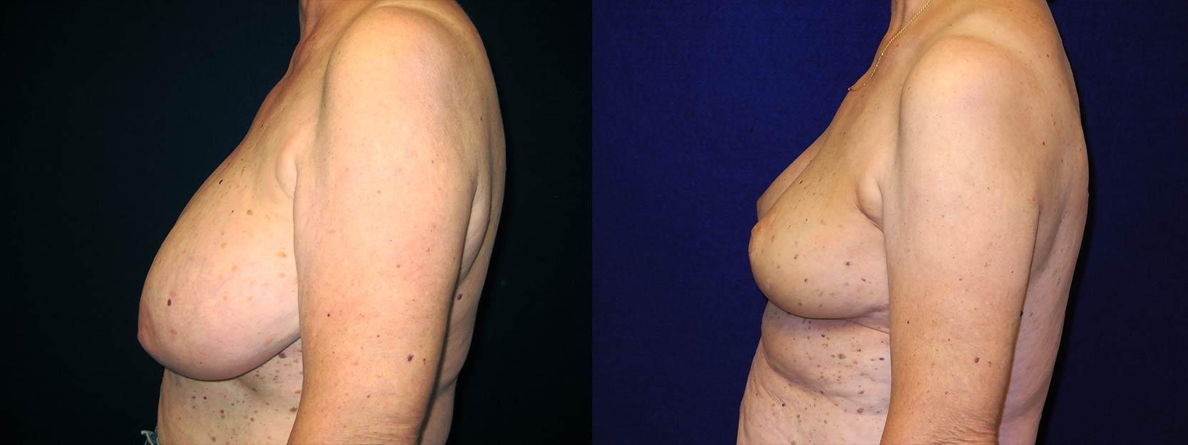 Dark spots between breast