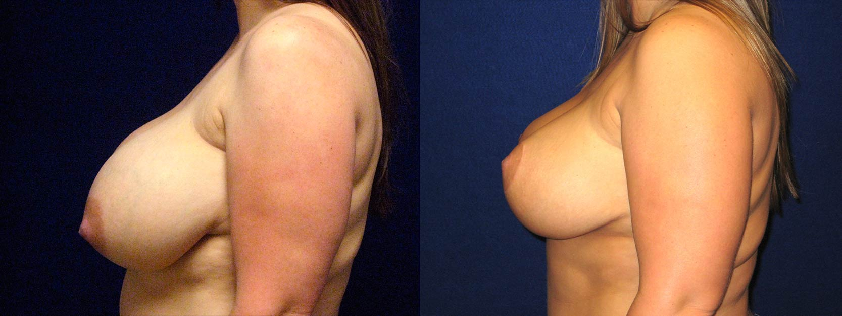 Left Profile View - Breast Reduction