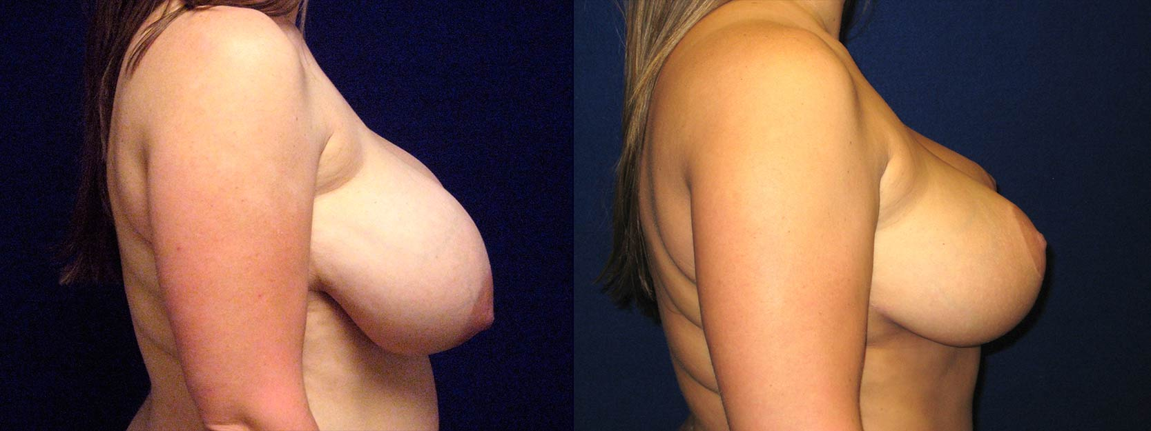 Right Profile View - Breast Reduction