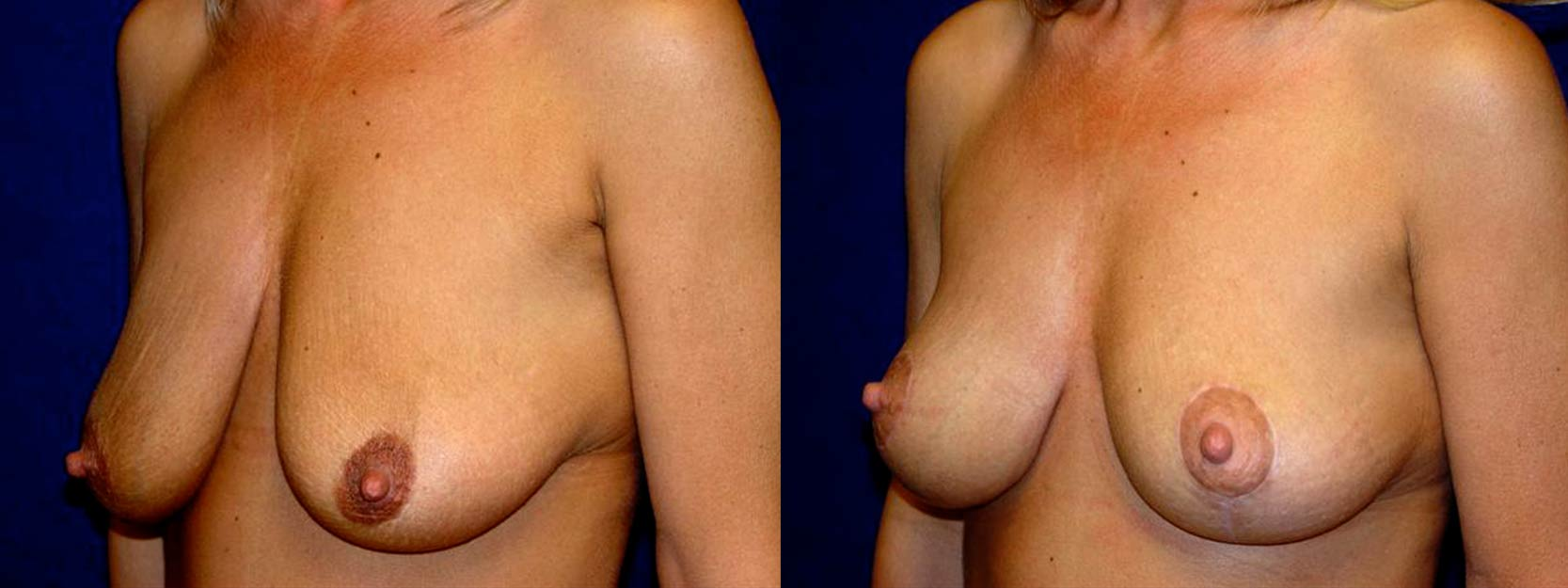 Left 3/4 View - Breast Lift After Pregnancy