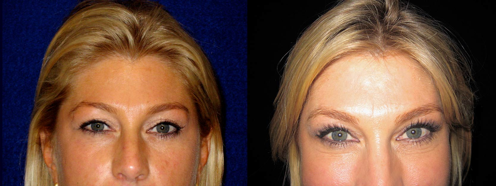 Fontal View - Upper Eyelid Surgery