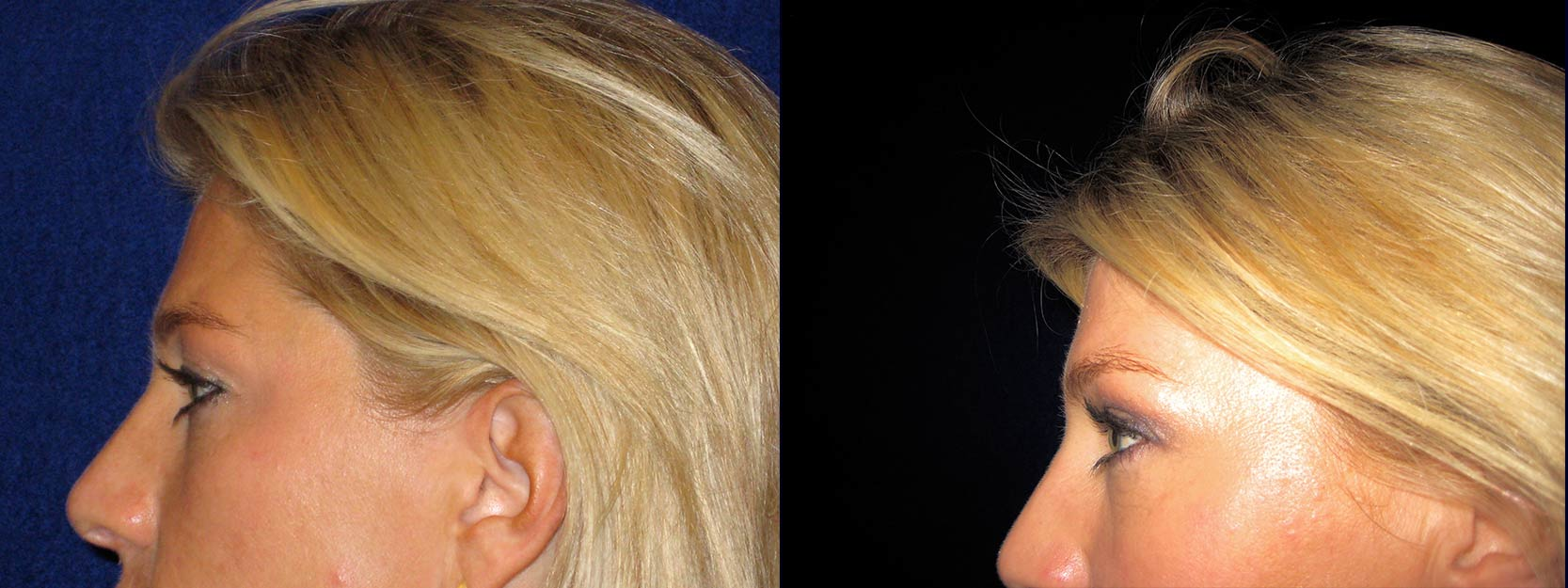 Left Profile View - Upper Eyelid Surgery