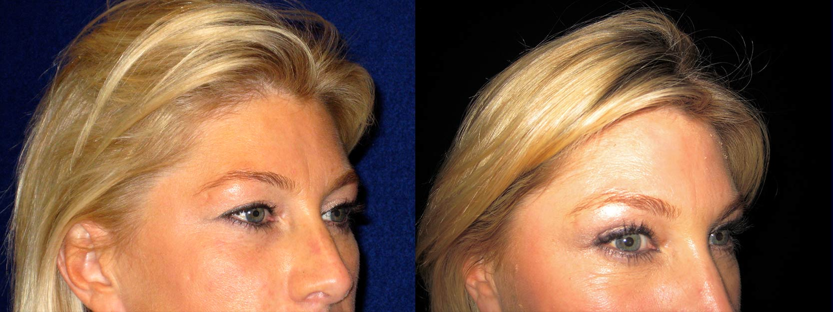 Right Profile View - Upper Eyelid Surgery