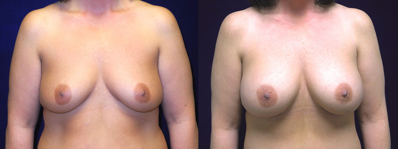 Frontatl View - Breast Augmentation After Weight Loss