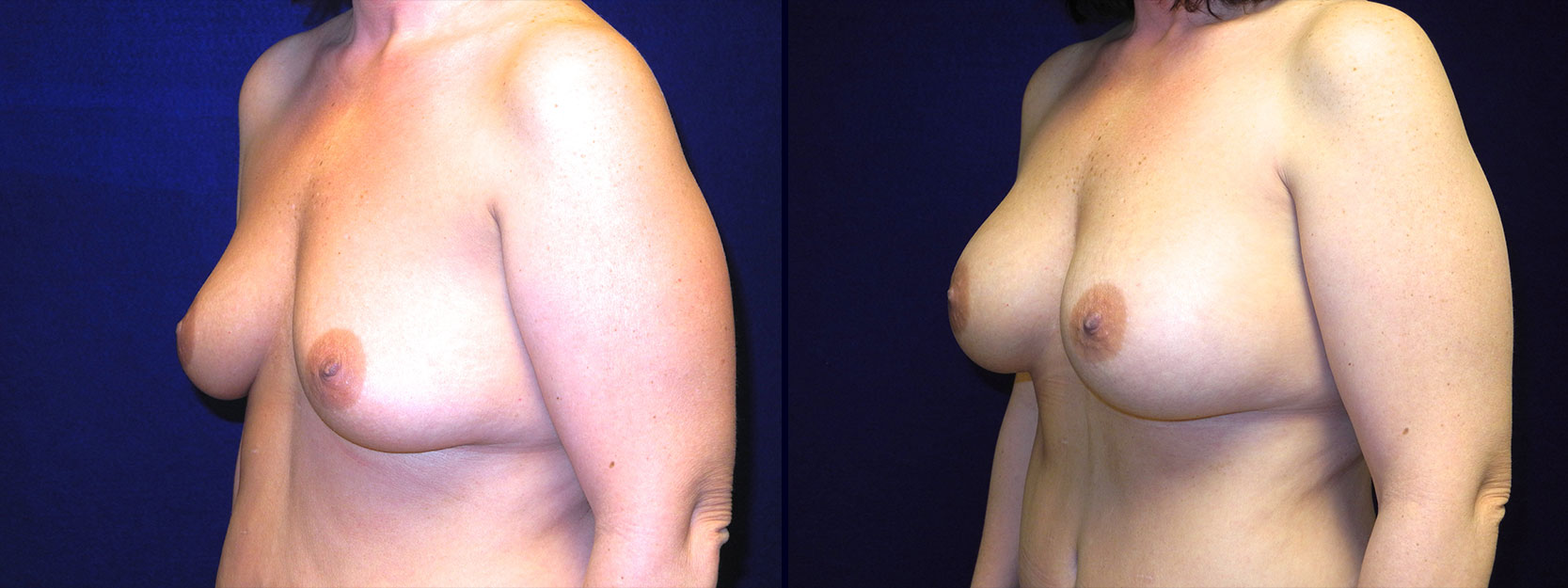 Left 3/4 View - Breast Augmentation After Weight Loss