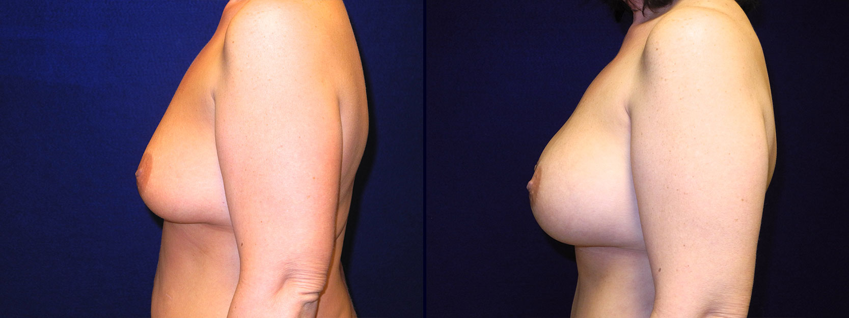 Left Profile View - Breast Augmentation After Weight Loss