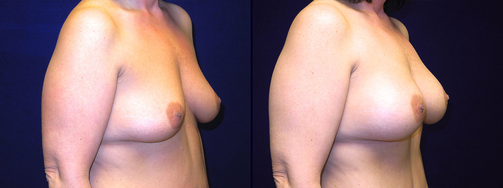 Right 3/4 View - Breast Augmentation After Weight Loss