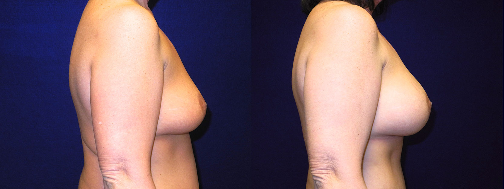 Right Profile View - Breast Augmentation After Weight Loss