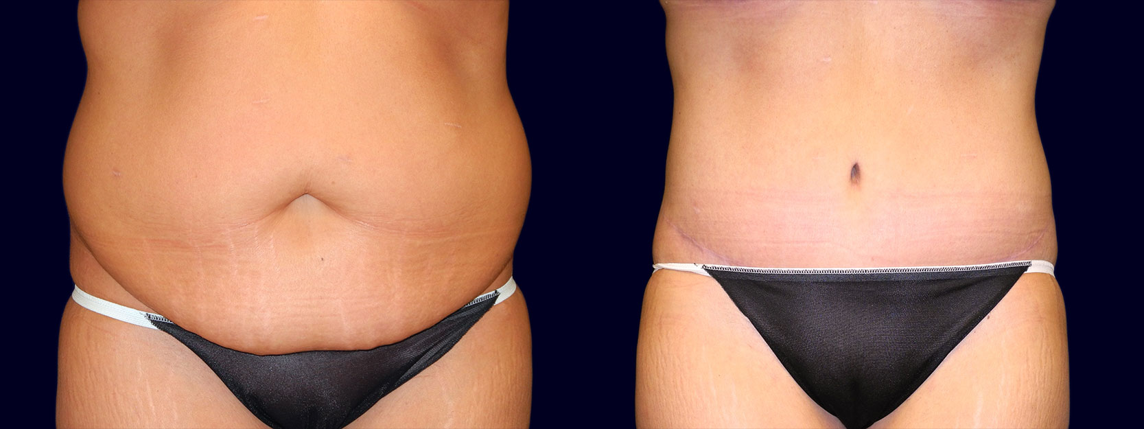 Frontal View - Tummy Tuck After Weight Loss