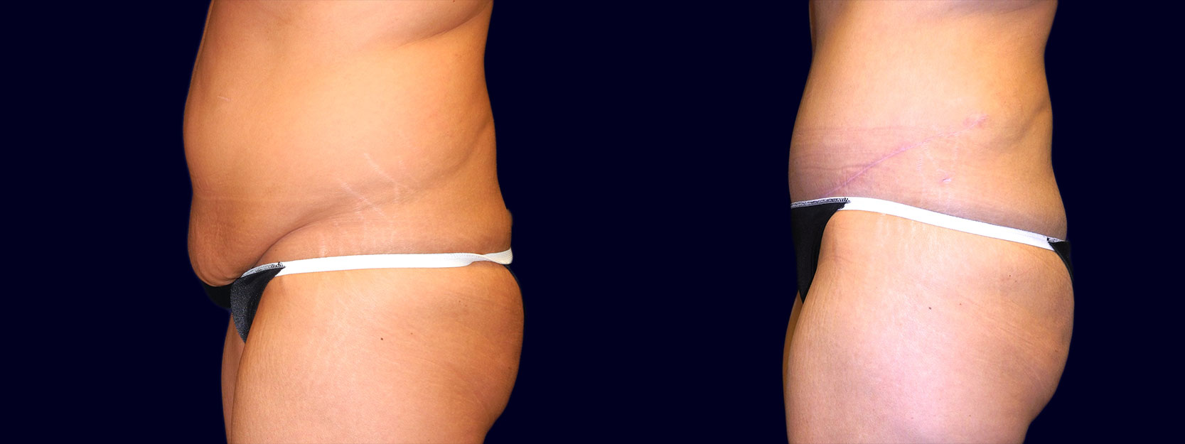 Left Profile View - Tummy Tuck After Weight Loss