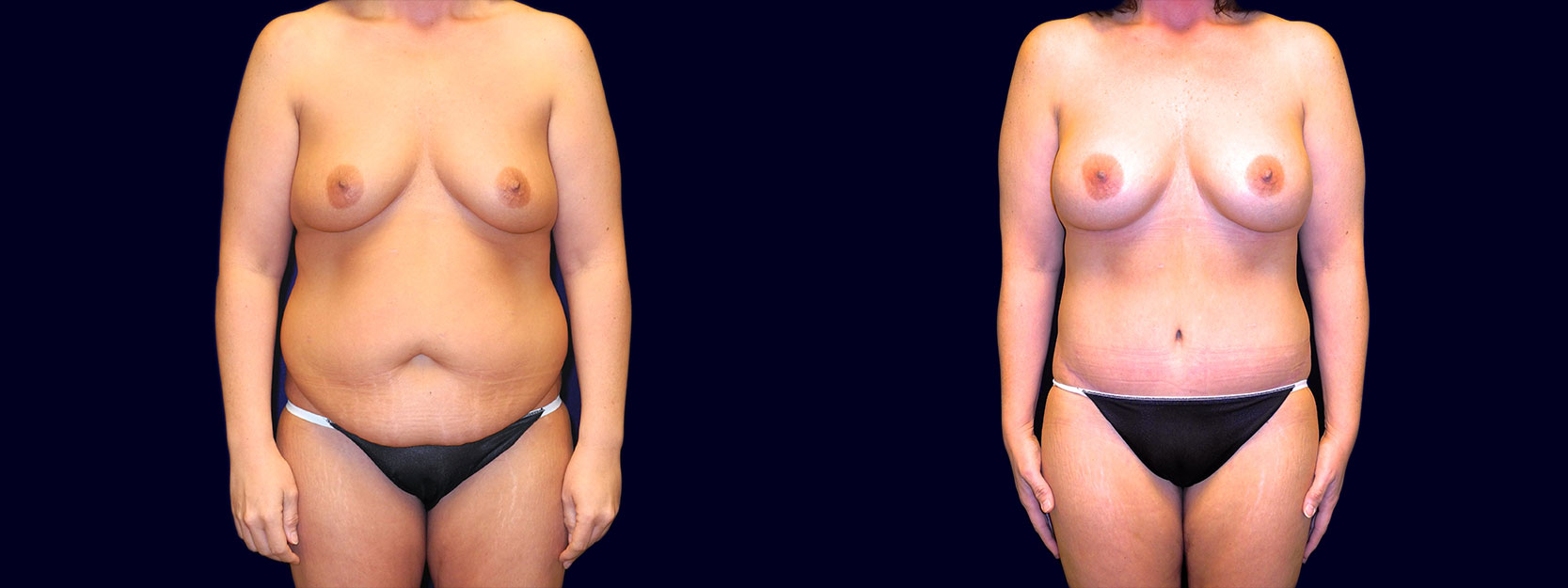Frontal View - Breast Augmentation & Tummy Tuck After Weight Loss