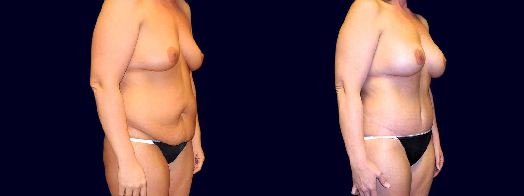 Right 3/4 View - Breast Augmentation & Tummy Tuck After Weight Loss