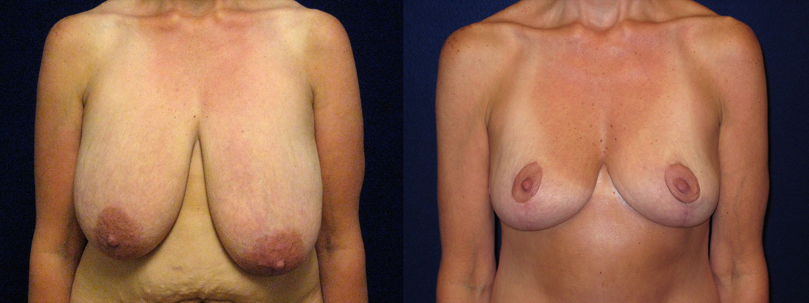 Frontal View - Breast Lift Reduction